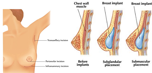 Phương pháp nâng ngực nội soi mang lại dáng ngực tự nhiên cho khách hàng