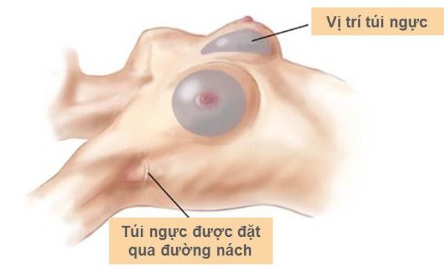 Nâng ngực nội soi được thực hiện ở đường nách với nét mổ mảnh