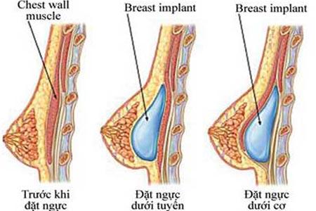 Phần túi ngực được đặt dưới cơ đảm báo an toàn cho tuyến vú