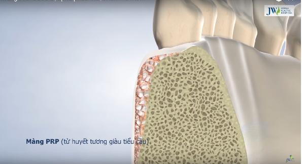 Cận cảnh màng tế bào PRP trong phẫu thuật hô móm