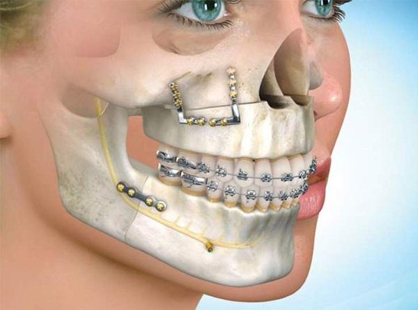 Phẫu thuật cắt xương hàm