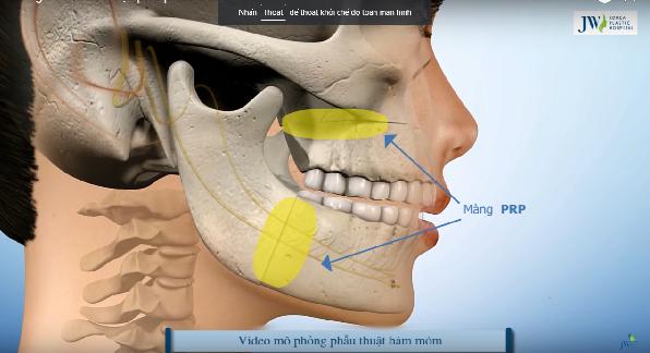 Màng PRP được  phủ lên vị trí ghép xương