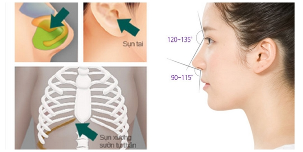 Hình mô phỏng sử dụng sụn sườn trong nâng mũi