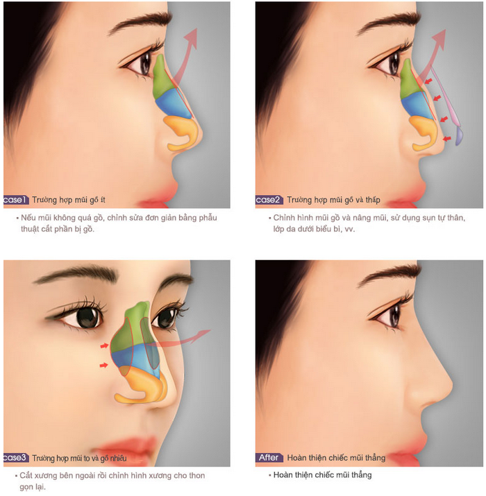Quy trình phẫu thuật mũi gồ bằng công nghệ S line