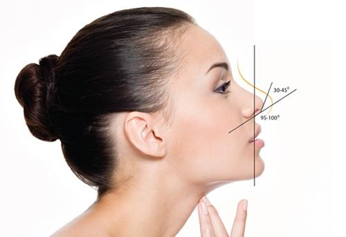Mũi hếch có đầu mũi hướng lên trên, góc đỉnh mũi vượt quá 45 độ