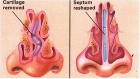 Hình ảnh chiếc mũi bị vẹo sụn vách ngăn do bẩm sinh