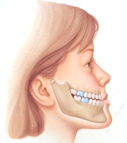 Hàm móm  là một trong những khuyếm khuyết phức tạp của hàm mặt