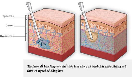 Bước sóng 1060nm hóa lỏng mỡ thừa và mỡ thừa được đưa ra ngoài bằng ống hút chuyên dụng