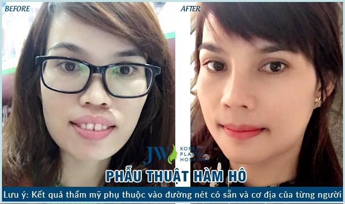 Sau 3 tuần phẫu thuật diện mạo của nữ doanh nhân Hoài Như thay đổi rất nhiều