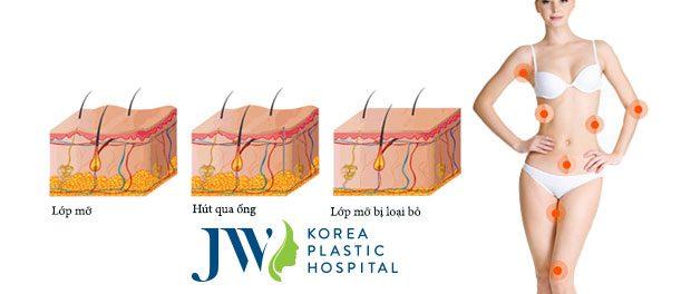 Công nghệ hút mỡ hông có tác dụng tại vùng hông, bắp đùi, cánh tay.