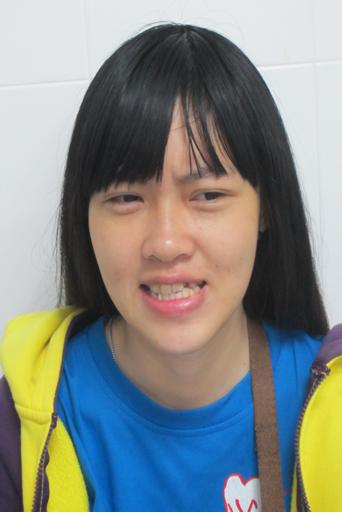 Tình trạng móm và lệch xương hàm của Hồng Anh khi chưa phẫu thuật