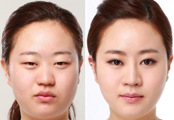 Sụp mí bẩm sinh đơn thuần chỉ có thay đổi vị trí mi mắt mà không kèm bệnh mắt hoặc bệnh toàn thân khác.