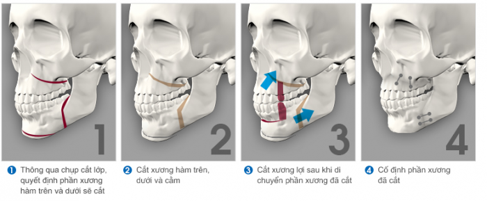 Quy trình phẫu thuật hàm hô (ảnh mô phỏng)