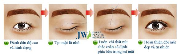 Mô phỏng quá trình bấm mí mắt chuẩn Hàn tại Bệnh viện thẩm mỹ JW