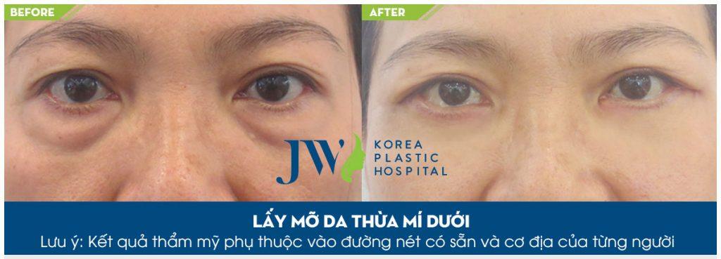 cách chữa bọng mắt tại nhà_5