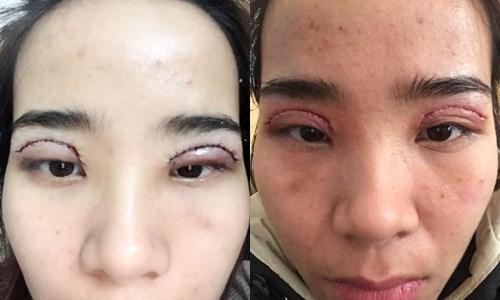Ham cắt mắt 2 mí giá rẻ, nhiều chị em đã nhận hậu quả khôn lường