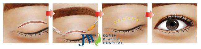 Kỹ thuật cắt mắt một mí (ảnh mô phỏng)