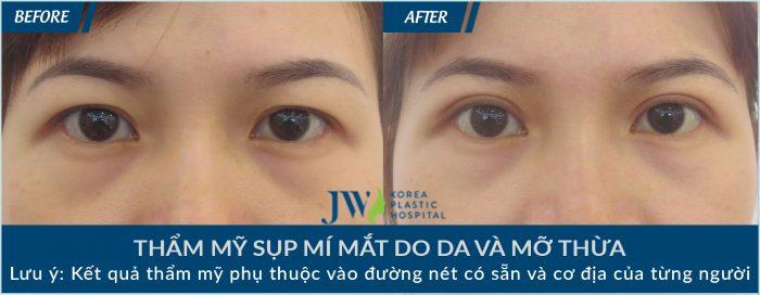 Khách hàng thẩm mỹ chữa sụp mí mắt tại JW
