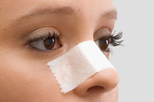 Sau khi nâng mũi bạn nên làm theo đúng chỉ dẫn của bác sĩ