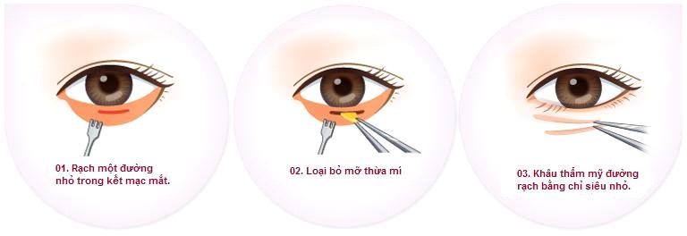 chi phi lay mo bong mat bao nhieu tien_1