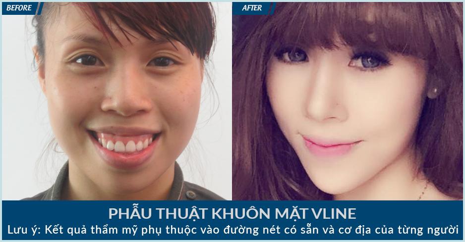 Diễn viên múa Lan Nhi – Thực hiện phẫu thuật khuôn mặt V line tại JW