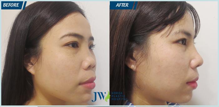 Dáng mũi của Hoa Hồng thay đổi sau khi phẫu thuật