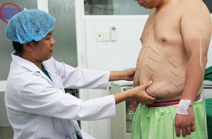 Trước khi tiến hành phẫu thuật bác sĩ phải tiên đoàn lượng mỡ thừa, khoanh vùng mỡ cần hút