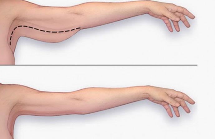 Hiệu quả vượt trội khi giảm mỡ bắp tay tại JW