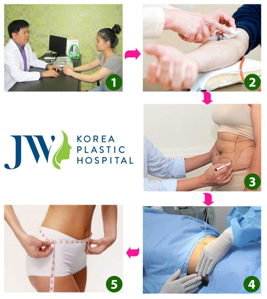 Quy trình hút mỡ hông Laser Lipo tại Bệnh viện Thẩm mỹ Hàn Quốc JW