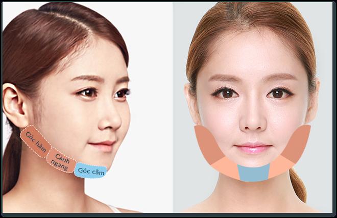 Cấu trúc xương hàm cần cắt trong phẫu thuật gọt mặt