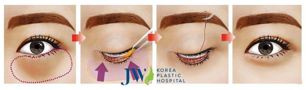 Đường rạch siêu nhỏ lấy đi phần da và túi mỡ tại mi mắt mang lại sự thẩm mỹ