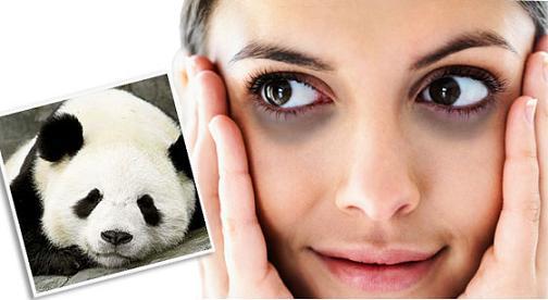 cách chữa bọng mắt thâm