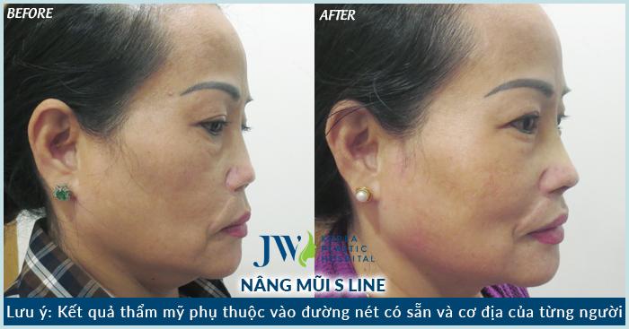 Tình trạng của chị N.T.T Loan được khắc phục sau khi nâng mũi S line thực hiện bởi BS Tú Dung