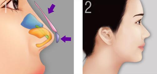 Mô phỏng dáng mũi bọc sụn sau khi nâng
