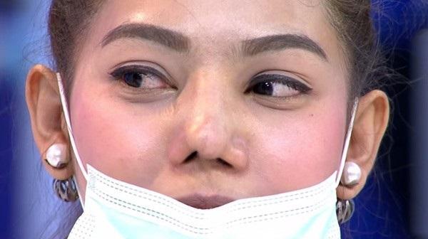 tác hại của nâng mũi không phẫu thuật