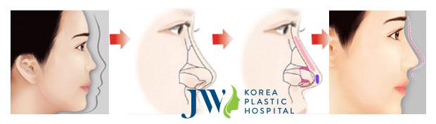Mô phỏng quá trình nâng mũi bọc sụn Hàn Quốc hiện đại