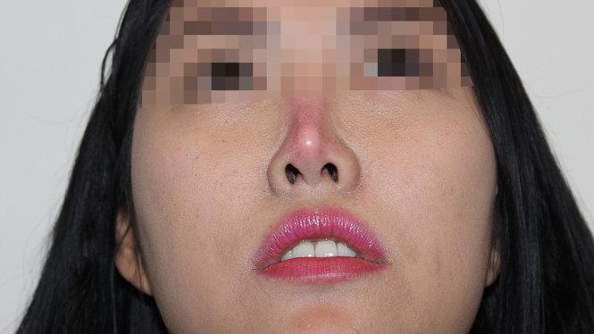 biến chứng thường thấy khi nâng mũi