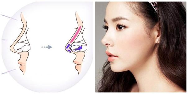 nâng mũi cấu trúc ở đâu đẹp và an toàn tại tphcm