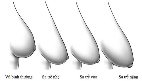 Các mức độ sa trễ của ngực