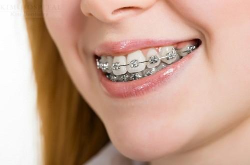 Nếu hô do răng thì phương pháp niềng răng hiệu quả tốt nhất