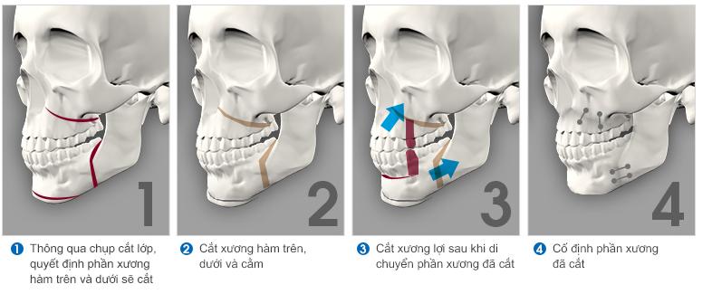 Quy trình phẫu thuật hàm hô không cần niềng răng