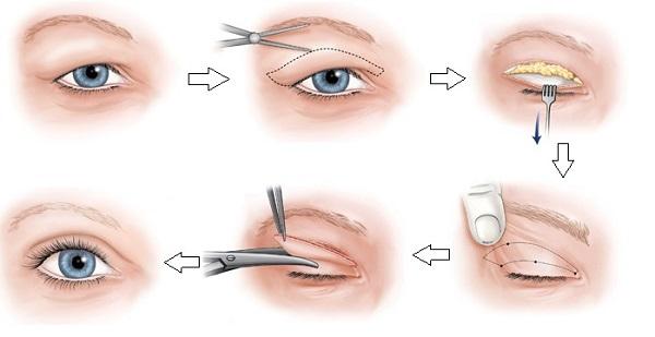 Quy trình điều trị nâng mí mắt bị sụp