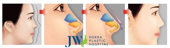 Mô phỏng quá trình nâng mũi S line chuẩn Hàn