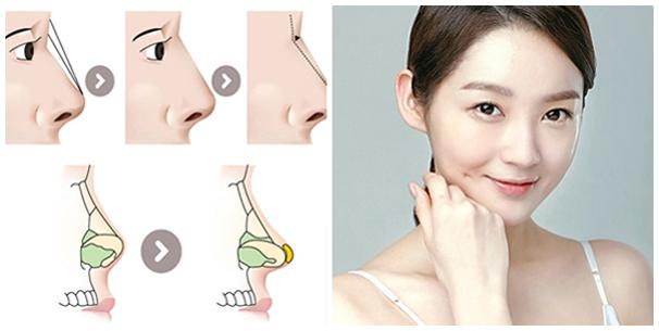 Bí quyết cho dáng mũi đẹp chính là công nghệ nâng mũi S line toàn diện