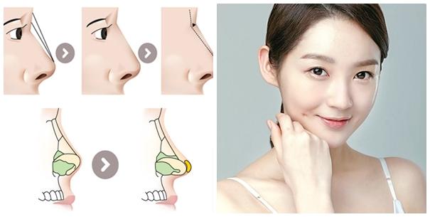 Nâng mũi S line chuẩn Hàn