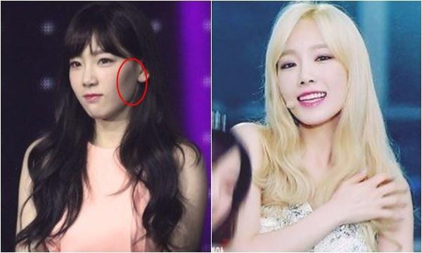 Nhiều cư dân mạng đã so sánh giữa các bức ảnh trưa kia và hiện tại của Tae Yeon