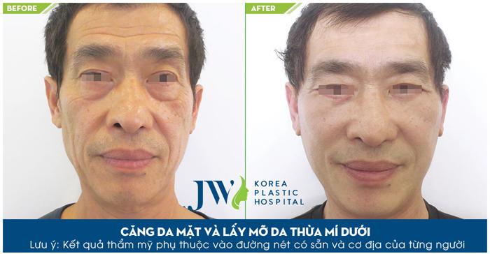Sau khi thực hiện căng da mặt những nếp nhăn trên khuôn mặt đã biến mất