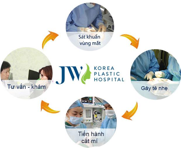 Quy trình thẩm mỹ cắt mí mắt khép kín tại JW
