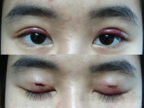Những hậu quả cắt mí mắt có thể xảy ra nếu bạn không may lựa chọn một cơ sở thiếu uy tín