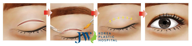 Cắt mí mắt giải quyết mỡ và da dư thừa mà không để lại sẹo